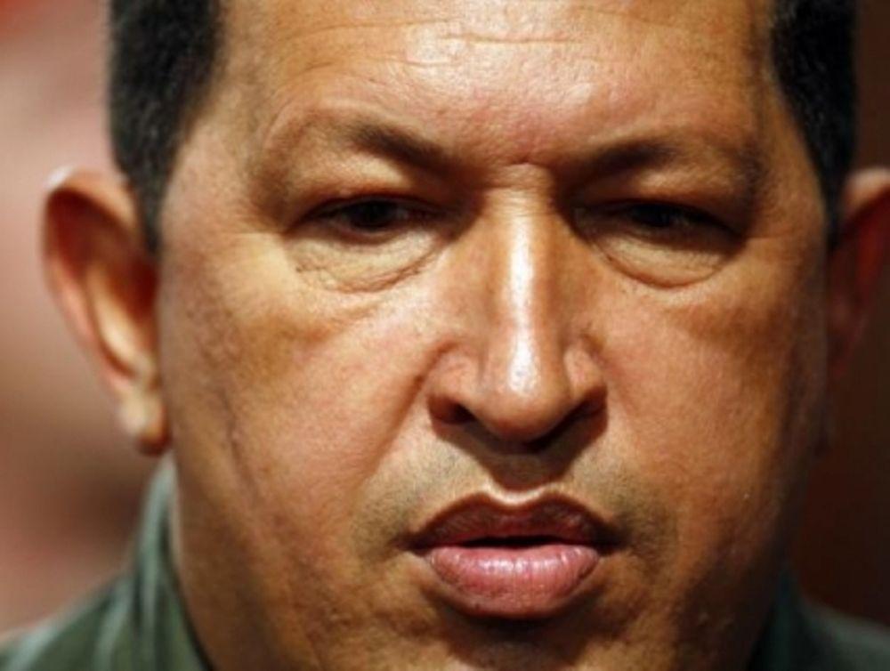 Τσάβες:«Θα κερδίσω τη μάχη»