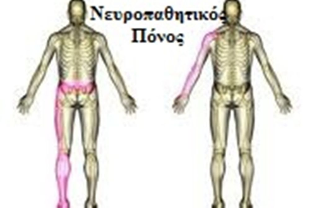 Νευροπαθητικός πόνος