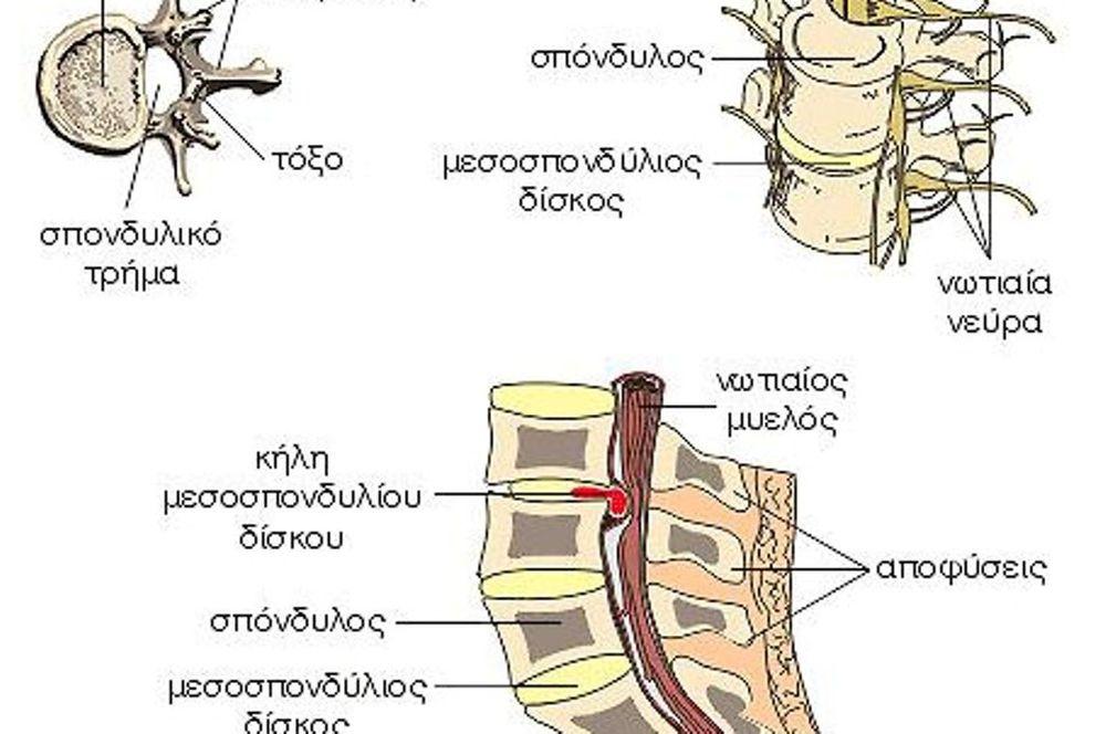 Πότε πρέπει να κάνω Μαγνητική Τομογραφία για τον πόνο στη μέση μου;