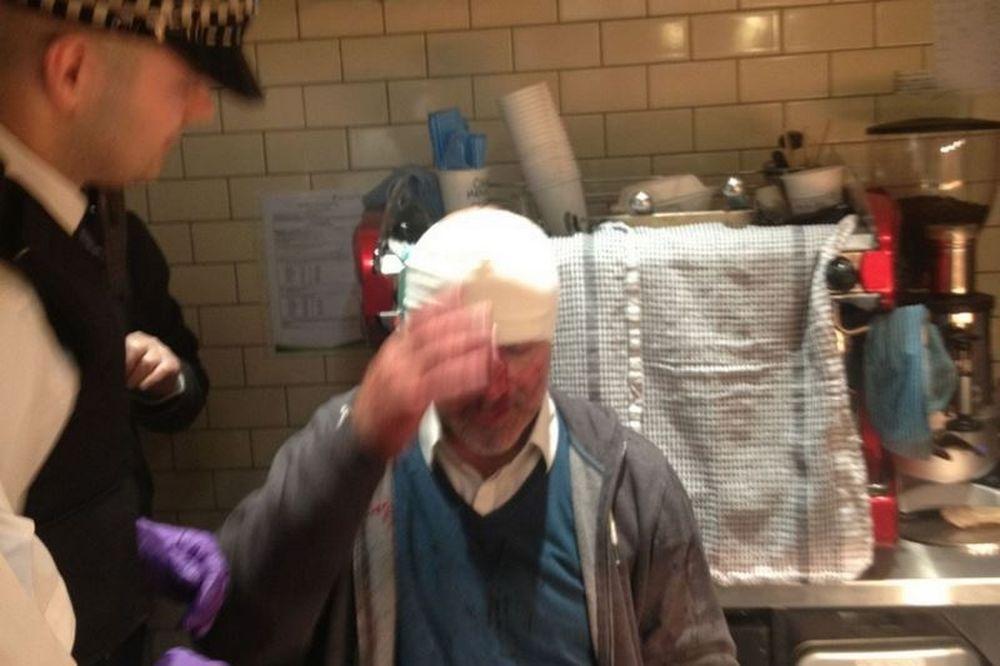 Άρσεναλ: Δέχθηκαν επίθεση από οπαδούς της Νάπολι (photos+video)