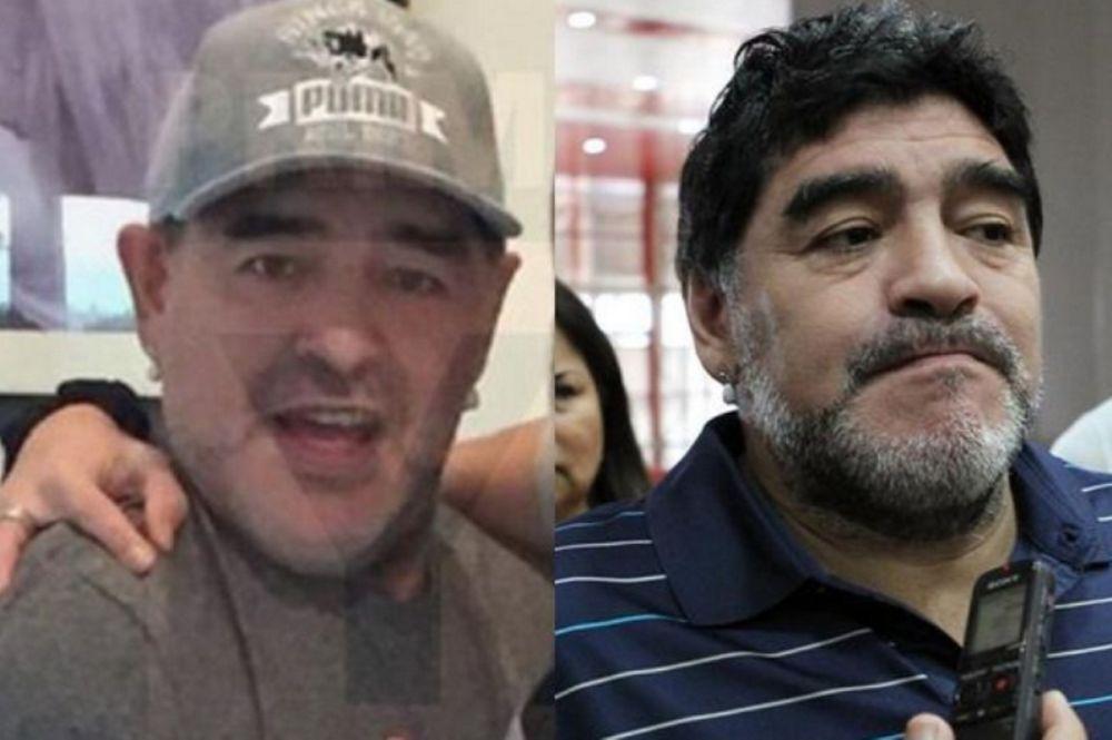 Ντιέγκο Αρμάντο Μαραντόνα: Σάλος με το... λίφτινγκ του! (photos)