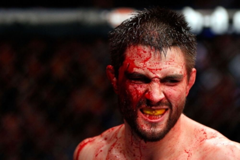 UFC: «Ψήνονται» Carlos Condit και Thiago Alves