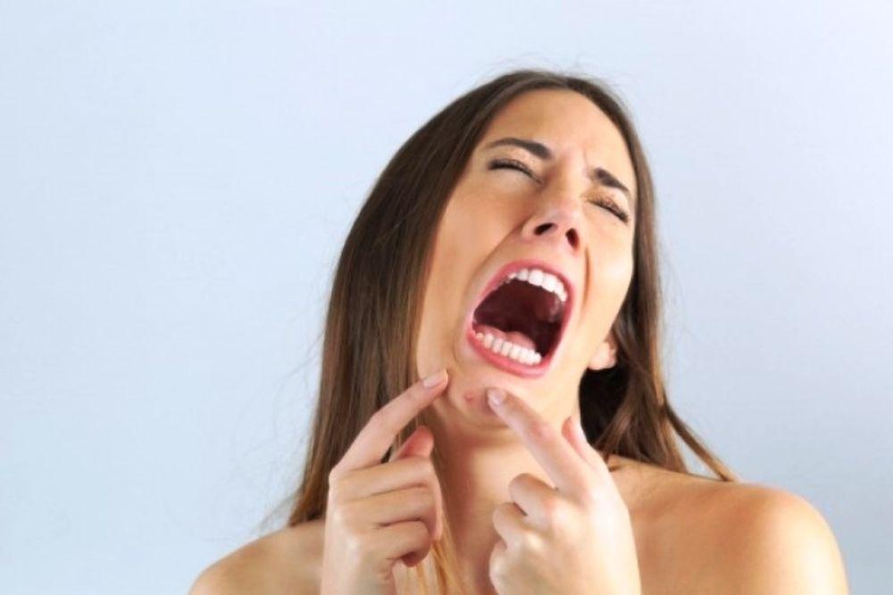Σπυράκια στο πηγούνι: Ποιο πρόβλημα υγείας φανερώνουν για τις γυναίκες