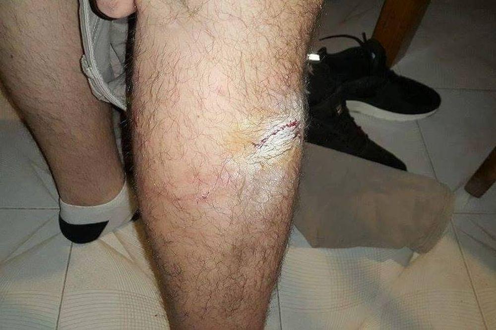 Κατέληξε στο νοσοκομείο από επίθεση σκύλου (photos)