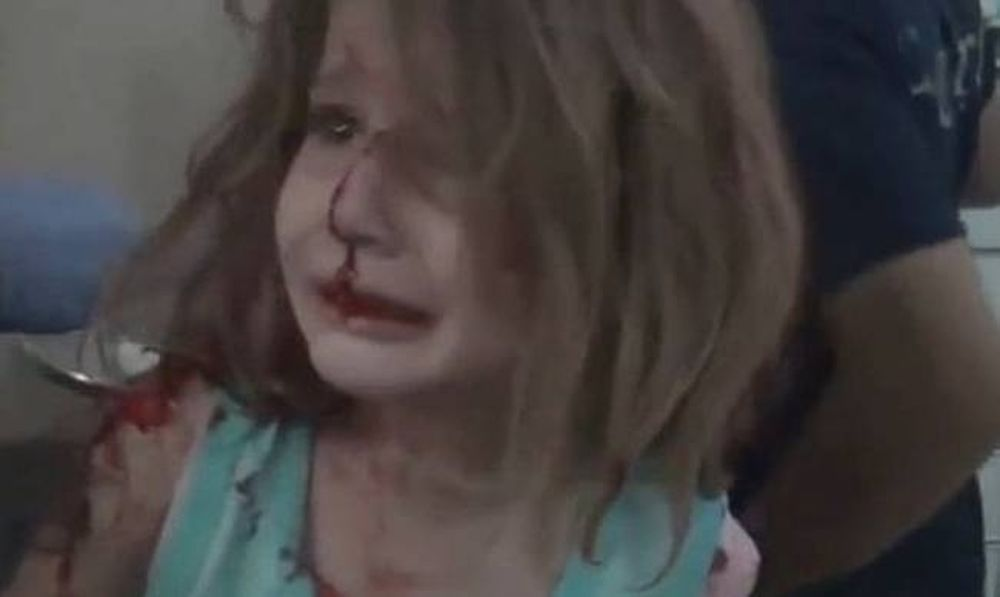 Συγκλονίζουν εικόνες από τη Συρία: Τραυματισμένο κοριτσάκι ψάχνει τον πατέρα της (vid)