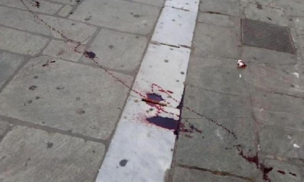 ΠΑΟΚ-ΑΕΚ: Αιματηρή συμπλοκή οπαδών στο Βόλο (σοκαριστικές εικόνες)