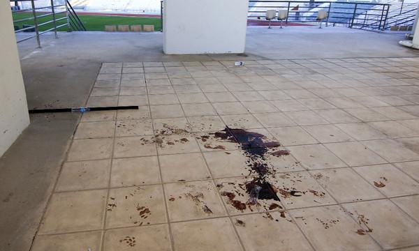 Τελικός Κυπέλλου: Σοκάρουν οι εικόνες με τα αίματα στο Πανθεσσαλικό!