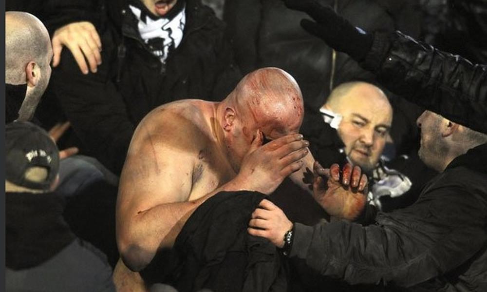 Χαμός στο ντέρμπι Παρτιζάν- Ερυθρός Αστέρας με ξύλο και αιμόφυρτους τραυματίες (photos+video)