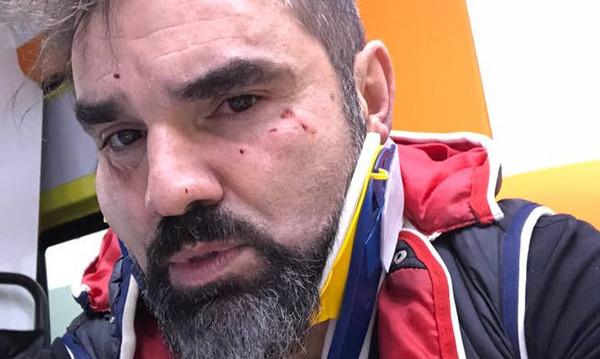 Θύμα δολοφονικής επίθεσης ο Νάσος Γουμενίδης (video+photos)